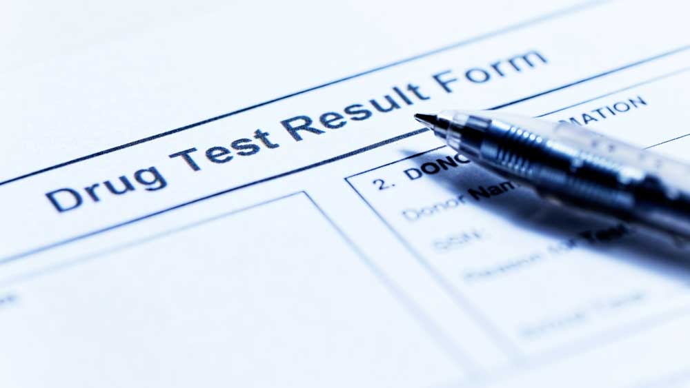 Does CBD show up in a Drug Test?